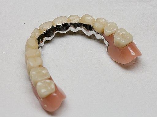 Zahnbrücke - unter Zähne